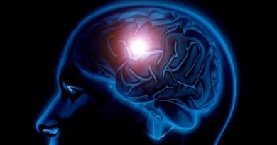 Más de seis millones de personas en el mundo tienen un aneurisma cerebral