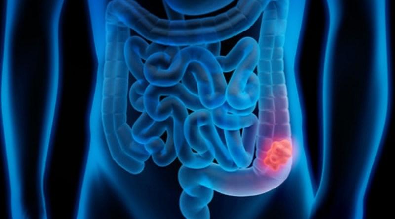 ¿Cómo prevenir el cáncer de colon?