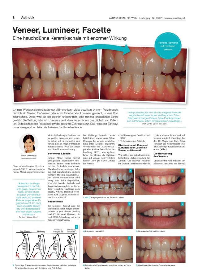 Artikel über Veneers von Marion Gredig Zihler in der Zahnzeitung Schweiz