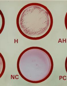 Widal test positive also principle procedure result interpretation and rh laboratoryinfo
