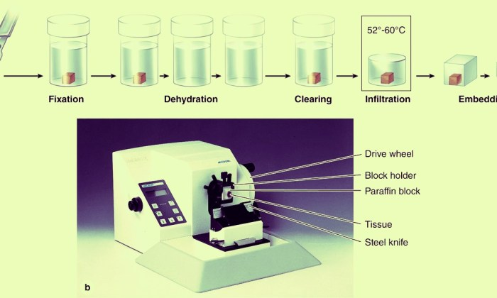 Methods of Examination of Tissues and Cells in Histopathology