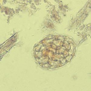 Vegetable Cells