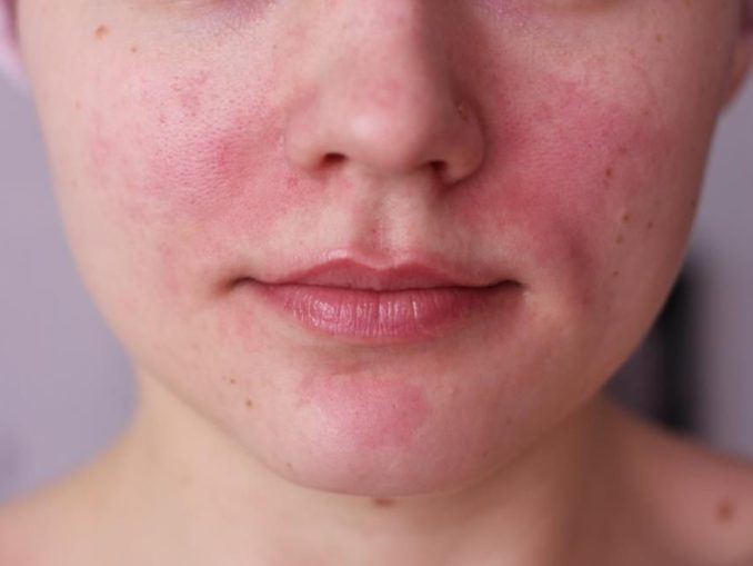 Почему при давлении краснеет лицо