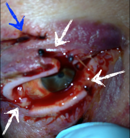 canine eye diagram right amp wiring instructions lacerations around the closing gap blue arrow indicates a laceration through upper eyelid white arrows indicate