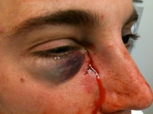 A young man who fell, and his glasses shattered cutting through his face medial to the eye.