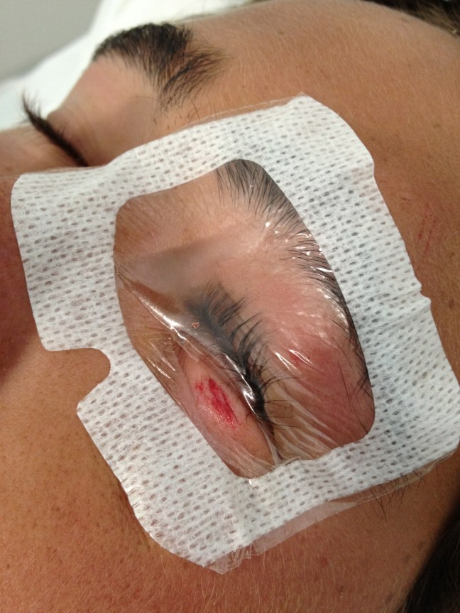 "The tegaderm ""shield"" is placed to block the eye, but allow exposure of the wound."