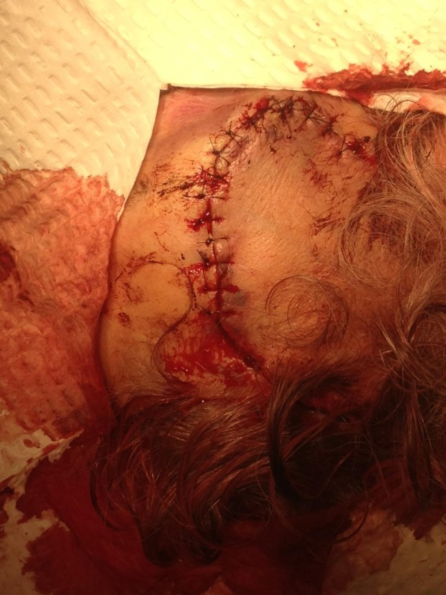 Forehead laceration, after meticulous repair with simple interrupted 6-0 nylon sutures.