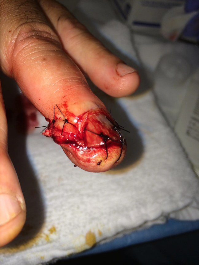 Repair of the skill saw injury previously pictured.  Simple interrupted sutures allowed excellent approximation of the wound margins without nail removal.