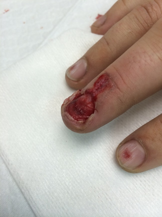 The nail was removed, revealing this underlying nail bed laceration.