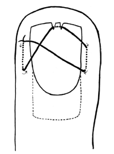 Cartoon depiction of a nail bed figure-of-8, described by Bristol and Verchere.