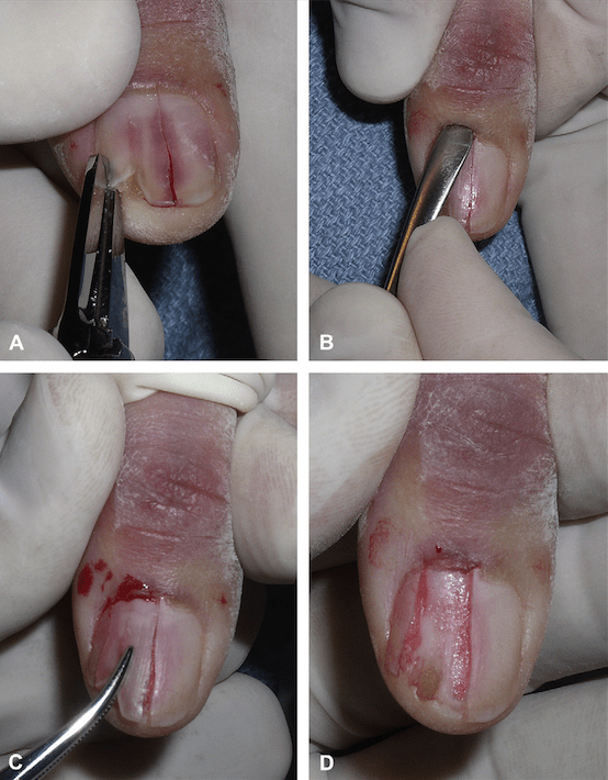 Longitudinal partial plate avulsion.  From Collins SC, Cordova K, Jetlinek NJ. Alternatives to complete nail avulsion.