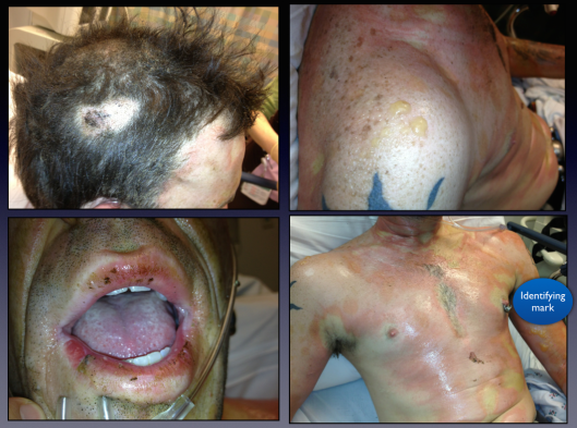 A patient with multiple superficial and partial thickness burns.