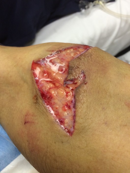 A large, V-shaped laceration on the forearm of a carpenter.