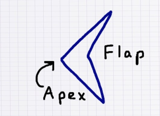 "A V-shaped laceration.  For reference purposes, the ""Flap"" edge and ""Apex"" of the wound are labelled.  The flap tip and apex are not easily opposed due to tension."