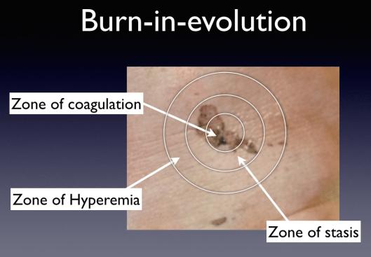 """Depiction of the """"burn-in-evolution"""" model."""