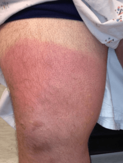 A superficial (aka first degree) burn wound injury, sustained on the leg of a patient on an all day river rafting trip without sun protection.