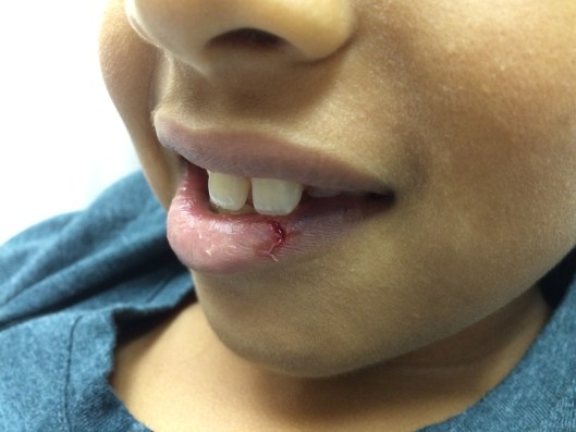 You might find yourself tempted to use absorbable sutures to close a lip laceration on a child to save a suture removal trip--but I'd think twice about it...dehiscence risk is high.