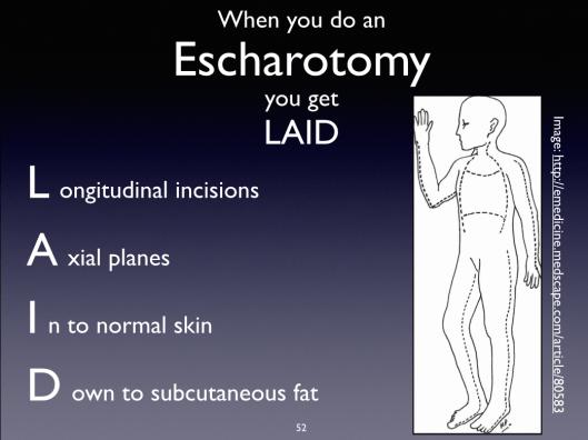"""""""LAID"""" mnemonic for principles of escharotomy."""