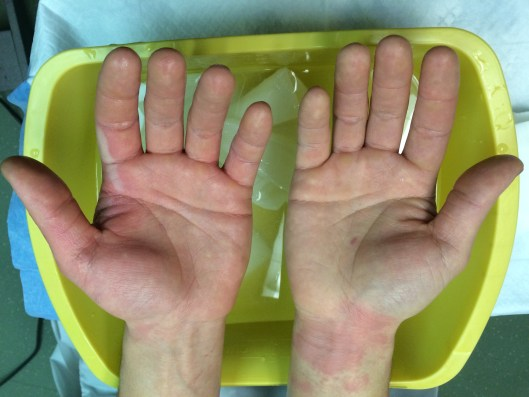 Superficial partial thickness burns of the hands, sustained with hot oil while cooking.