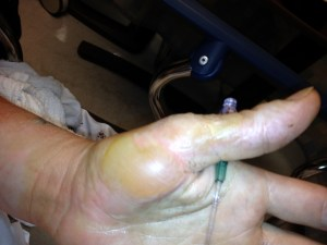A burn blister potential worth debriding,