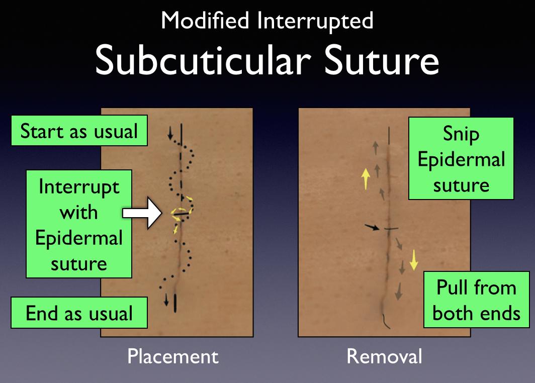 Subcuticular Suturing Pearls Closing The Gap