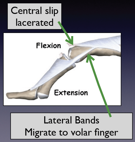 Central Slip Lac