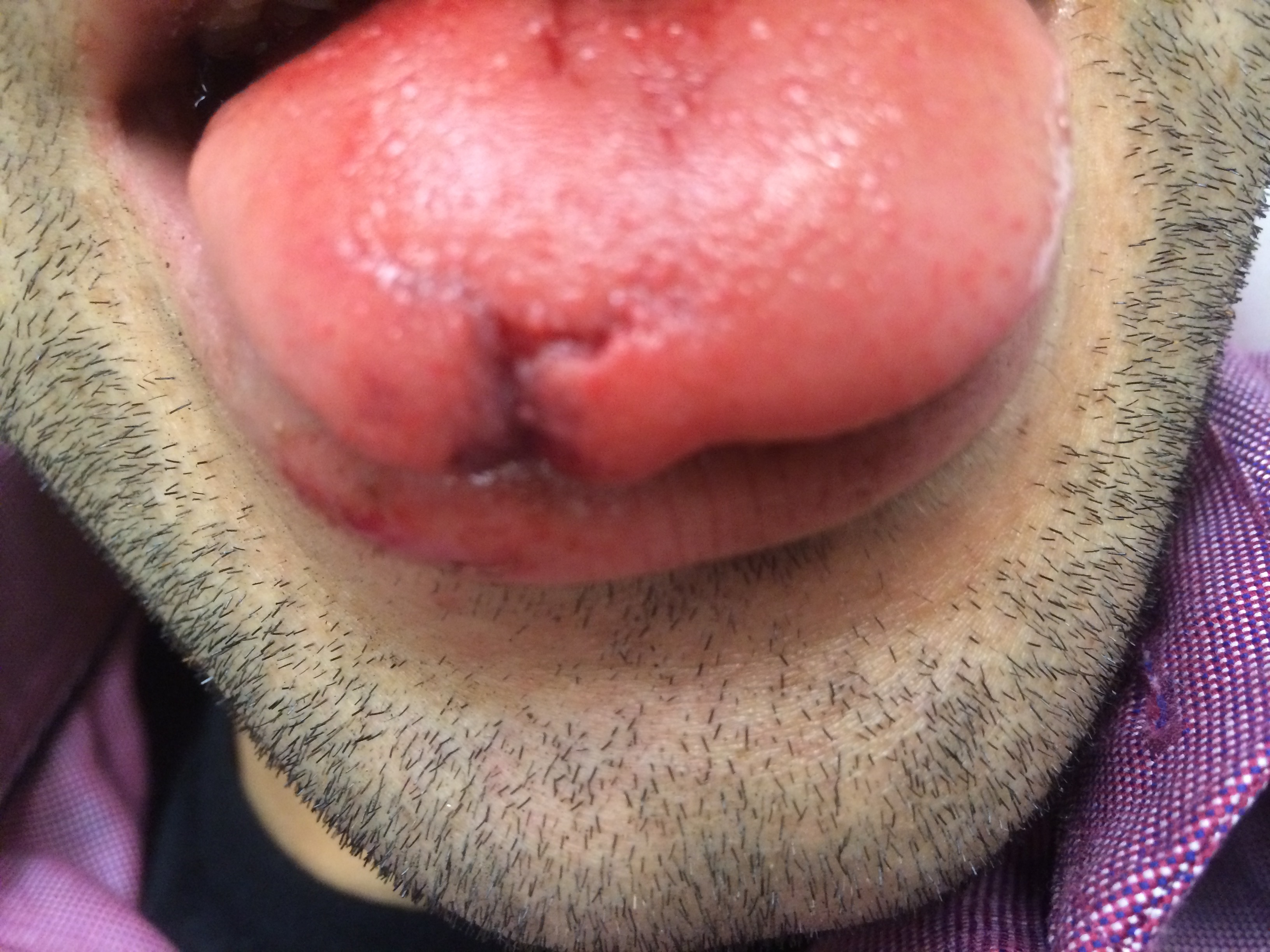 Tongue Lacerations Closing The Gap