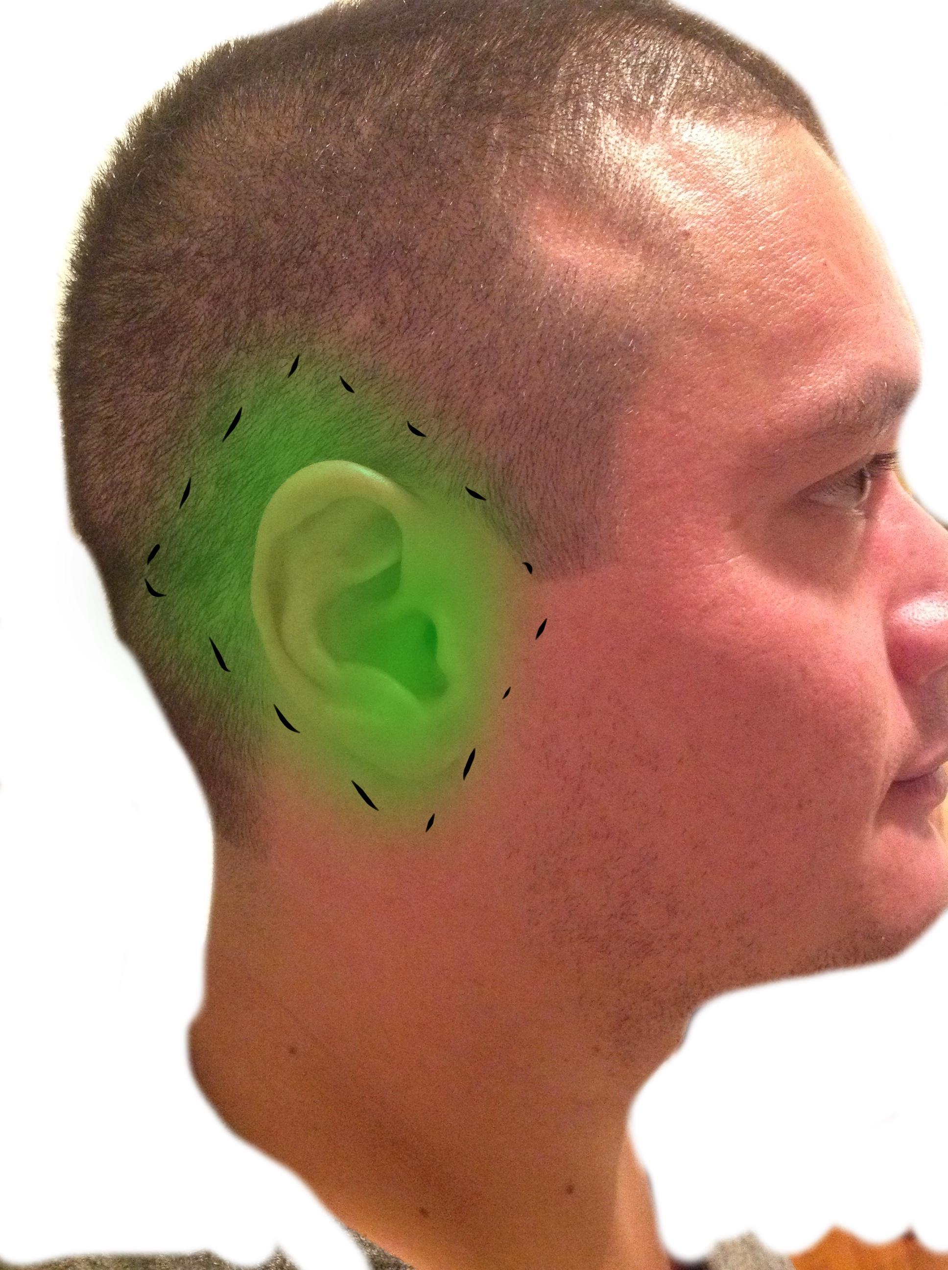 Field Block Of The Ear Closing The Gap
