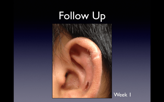 Follow up on the same ear laceration at one week.