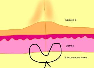 The set-back dermal suture