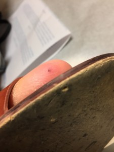 Close-up of a plantar puncture wound through a shoe