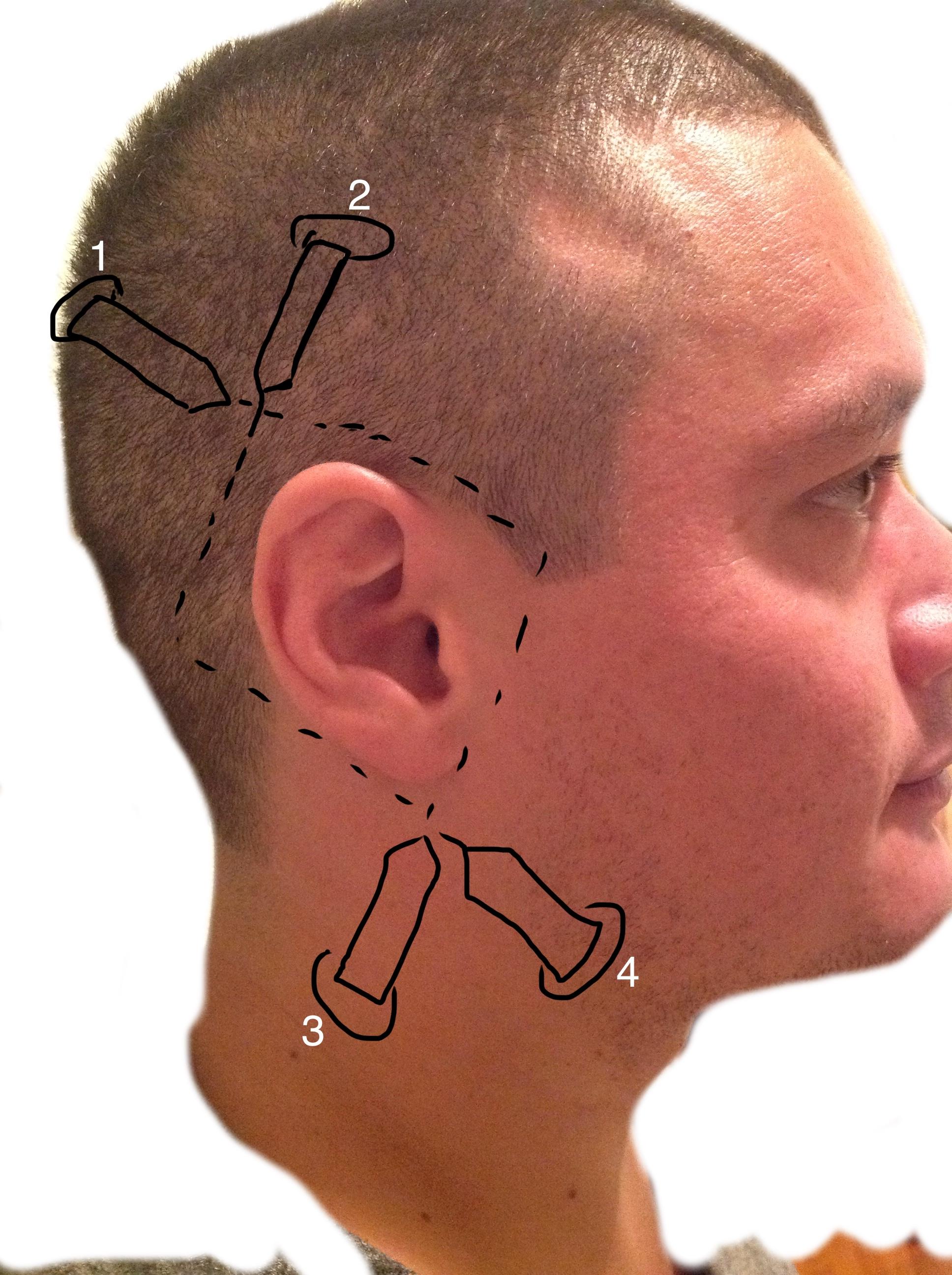 Field Block Of The Ear