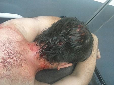 Manifestante herido en la represión