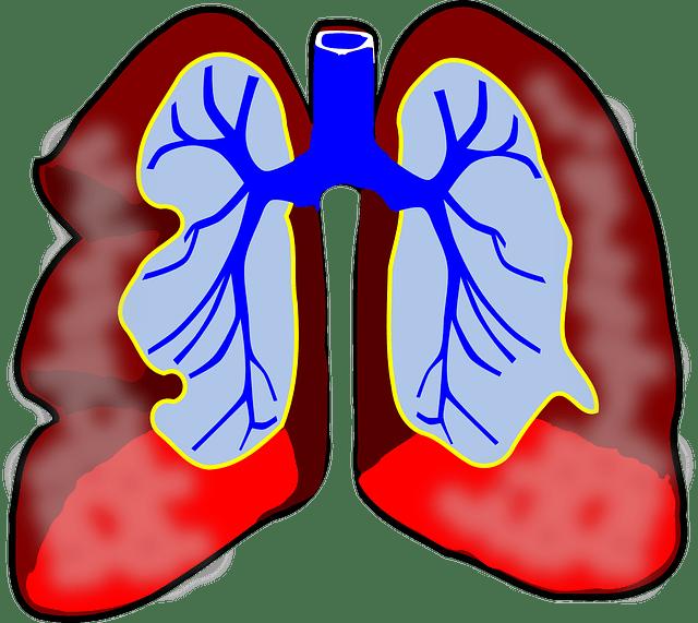 Keto/ LCHF și astmul bronșic