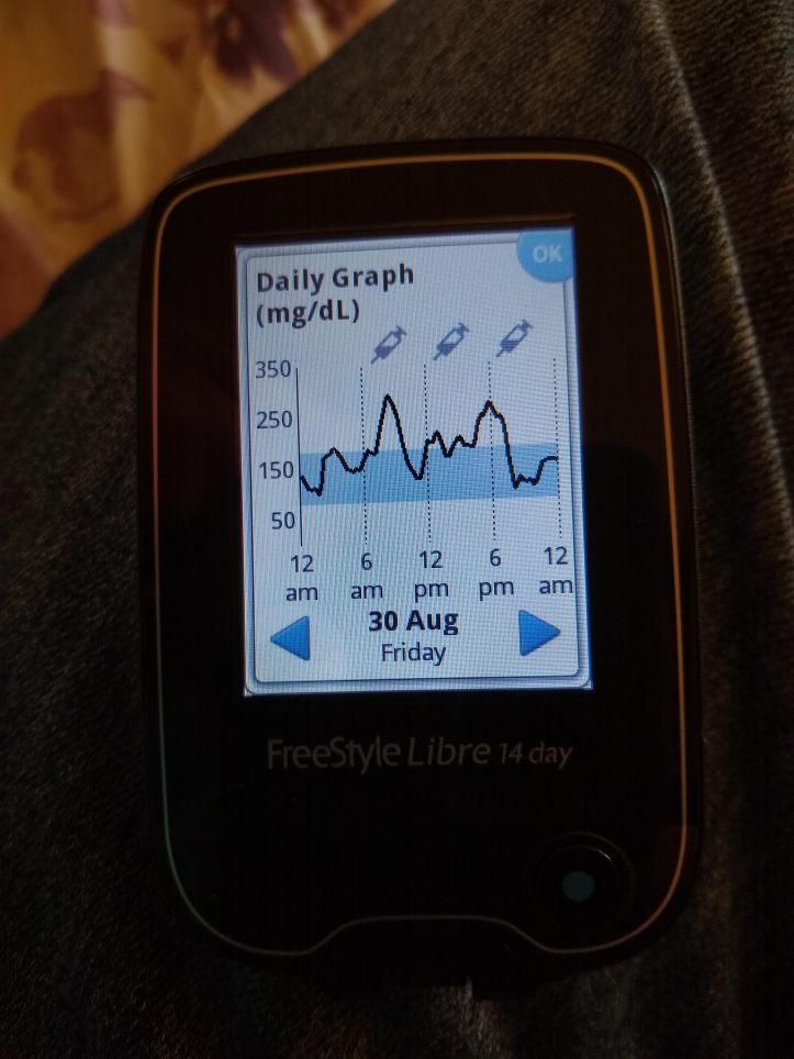 freestyle libre CGM graph