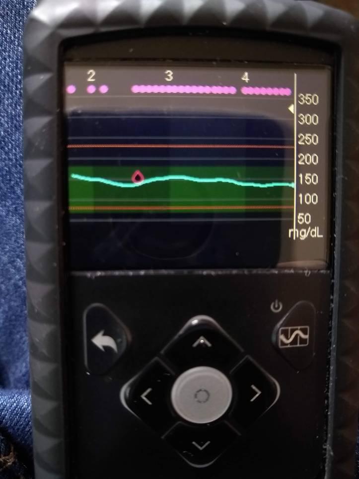 Medtronic Minimed 670G Insulin Pump Graph