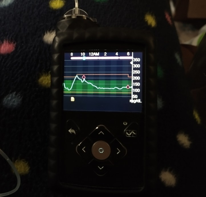 Medtronic Minimed 670G Insulin Pump graph in auto mode