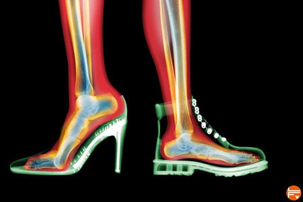Chaussures tendinite du tendon d'Achille.
