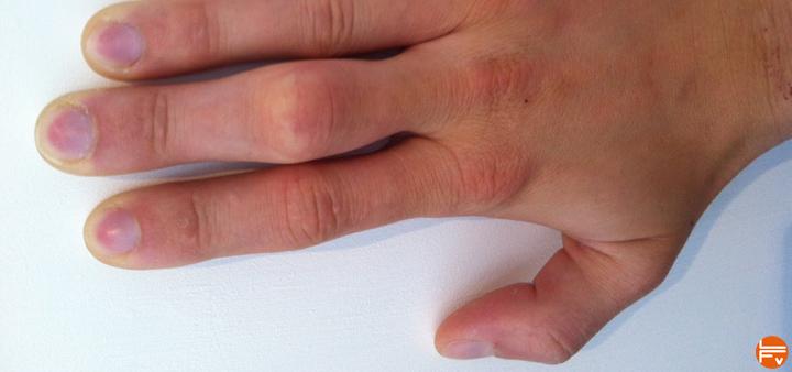 prevention-fractures-stress-doigts-jeunes-grimpeurs