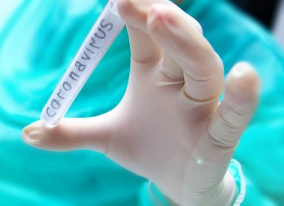 Coronavirus : Communiqué du 24 mars