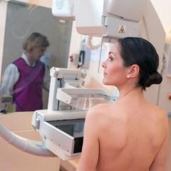 Dépistage du cancer du sein : Dates de passage