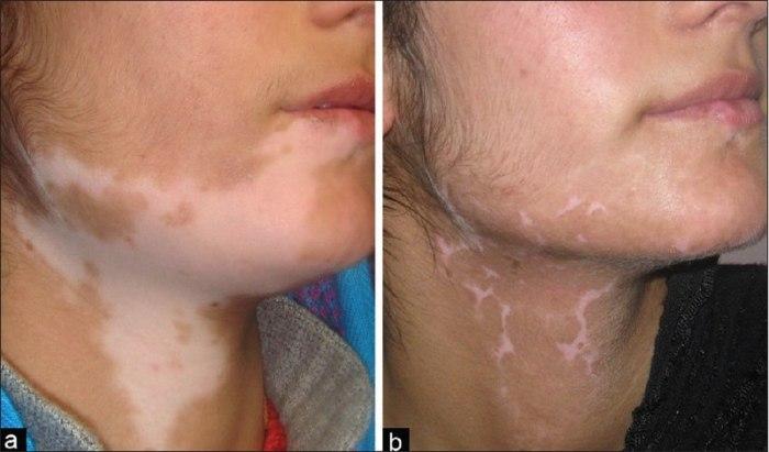 File:Vitiligo segmentar.jpg