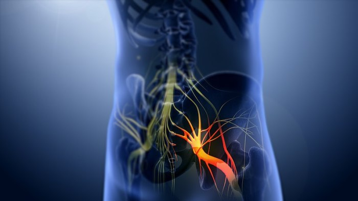 File:3D still showing Sciatica nerve.jpg