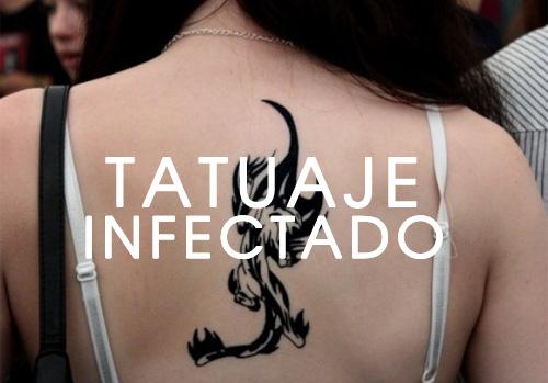 Cómo Saber Si Un Tatuaje Esta Infectado Nunca Lo Ignores