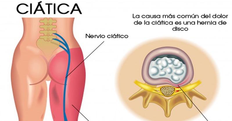 l4 nerve pain diagram wiring 3 way switch ceiling fan and light los 8 mejores tratamientos naturales para la ciática