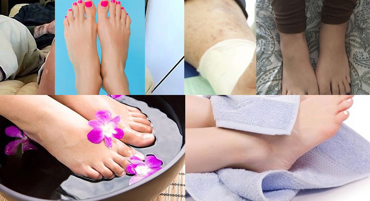 Cómo curar el pie diabético en casa - La Guía de las Vitaminas