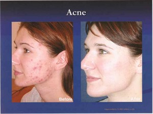 Acne - The Skin Center: Board-Certified Dermatologists ...
