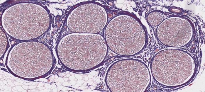 Axon cross-section.