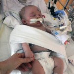 Successful Open Heart Surgery — Looking to the Future
