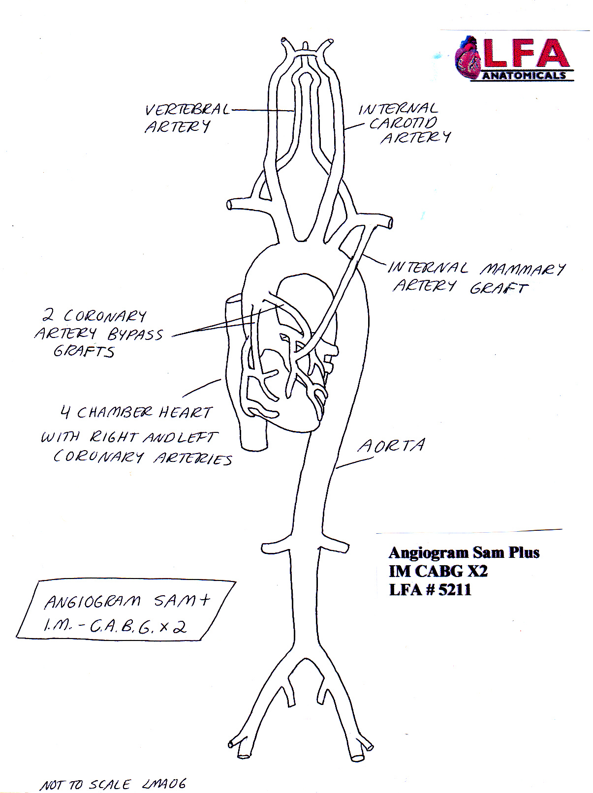 diagram of a heart bypass graft 2000 nissan frontier tail light wiring angiogram sam plus im cabg x2 with two coronary artery